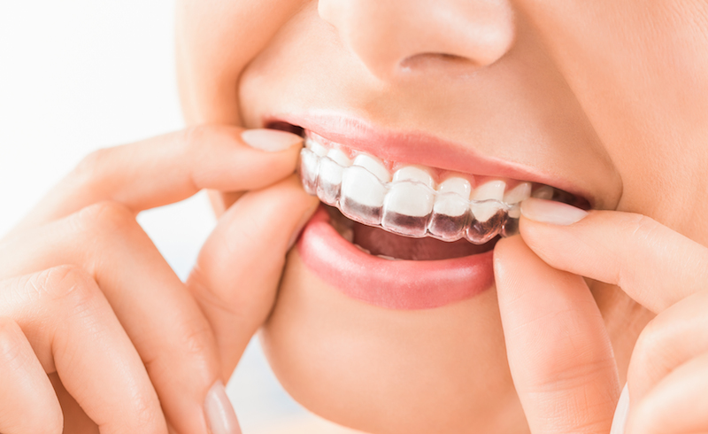 Denti allineati senza più vergogna. L'ortodonzia invisibile cambia le regole del gioco!